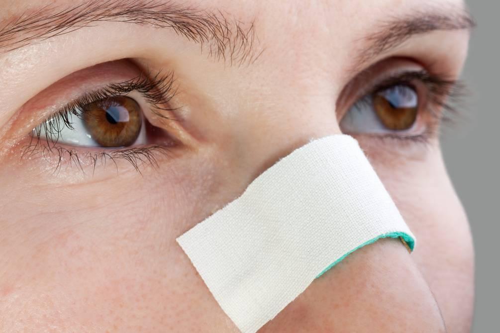 Qué son las fracturas nasales y cuáles son sus señales? | Salud | La  Revista | El Universo