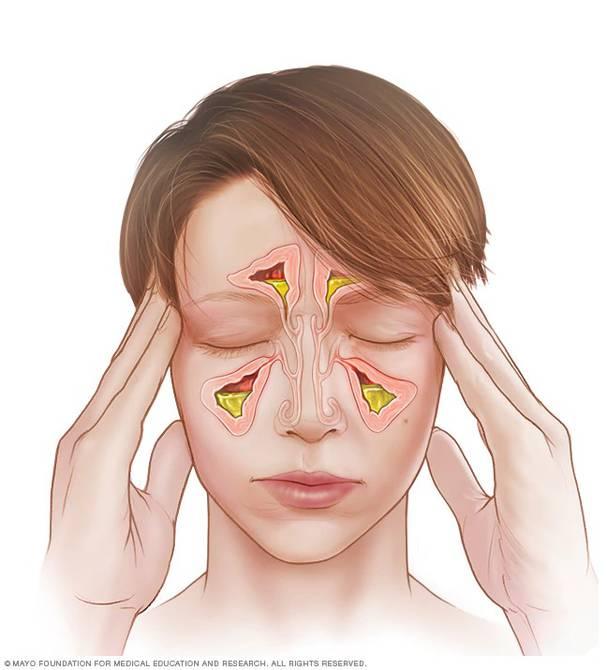 Sinusitis Causas Y 6 Remedios Naturales Para Contrarrestar Sus Síntomas Salud La Revista El Universo